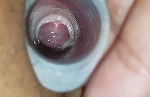A barring remark a catch wifes cervix